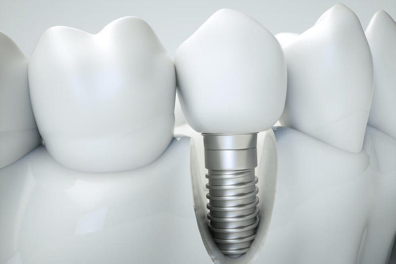 Virtual model of a dental implant